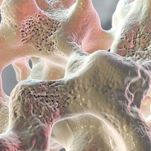 Osteoporosis Image-2-min